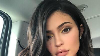 Kylie Jenner se quitó el relleno de los labios: así ha sido su transformación