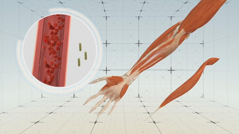 Animación: Las causas y los síntomas de la sepsis