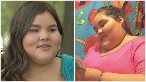 La historia de superación de Dayana Camacho, la adolescente más obesa de...