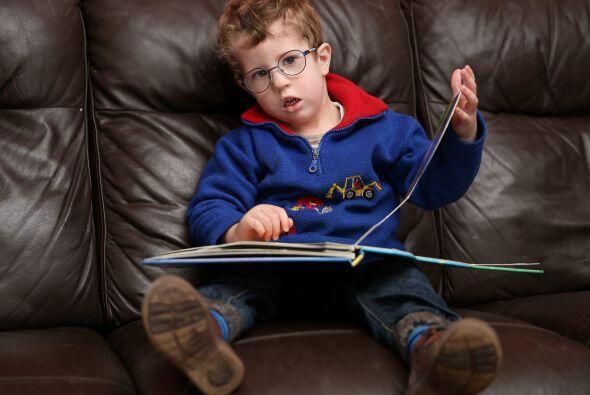 La distrofia miotónica congénita es una enfermedad que limita la vida, y...