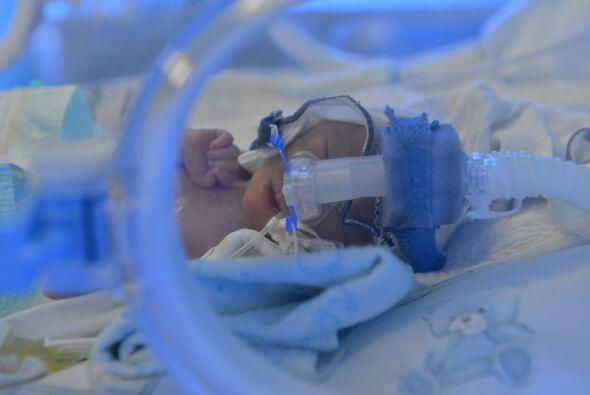 ¡Las probabilidades de un embarazo de quintillizos son de una en 52 mill...