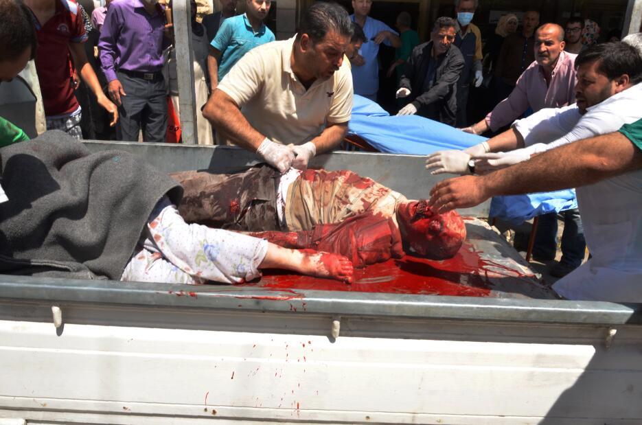 La carnicería continúa en Alepo pese a una tregua. GettyImages-525437488...