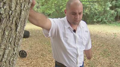Trágica historia de un venezolano que perdió un brazo y un ojo en una pr...