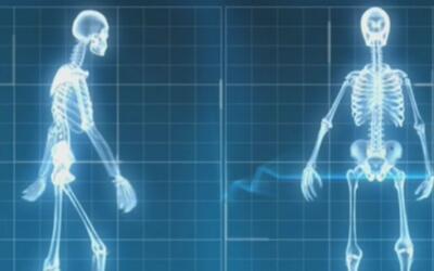 Esto es lo que tiene que saber acerca de las lesiones de medula espinal