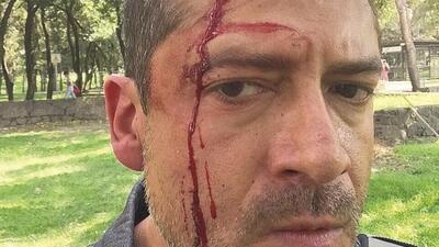 El periodista mexicano Humberto Padgett tras ser golpeado por narcomenud...