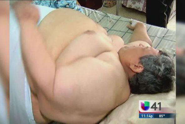 Un hombre ha llegado a tal grado de obesidad que ninguna ambulancia lo p...