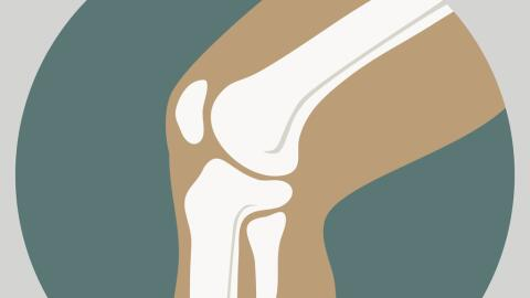 A menudo la cirugía se realiza para eliminar parte de un menisco...