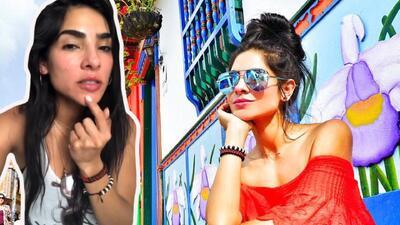 Se muestra al natural: Alejandra Espinoza enseña (sin temor) las imperfecciones de su rostro