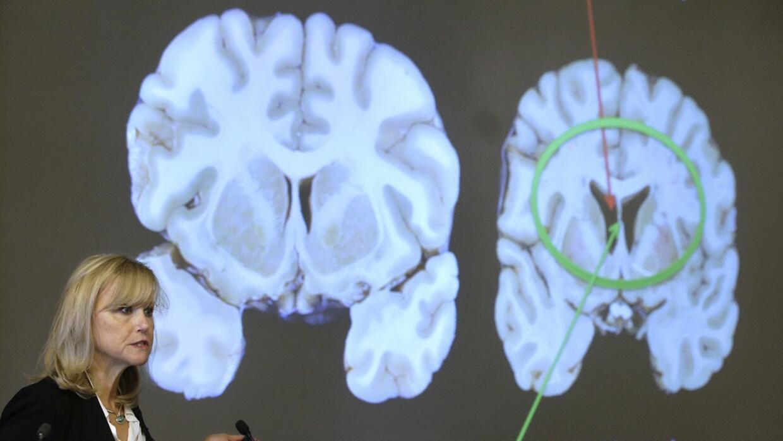 Imagen del cerebro del Hernández, donde se muestra el deterioro frente a...