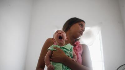 salud microcefalia brasil