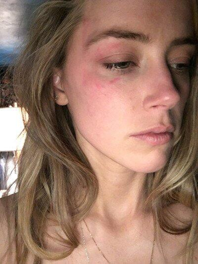 Aquí se puede ver a la actriz con las heridas en su cara, supuestamente...