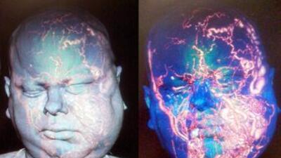Otros médicos habían determinado que el caso era inoperable. (Imágenes c...