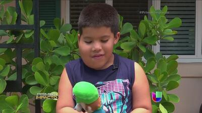 Los tumores que hacen crecer el rostro de un niño