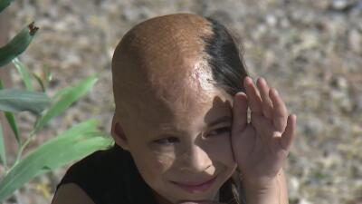 Su madre la abandonó por las quemaduras en su cuerpo: la difícil infancia de una niña que casi muere calcinada