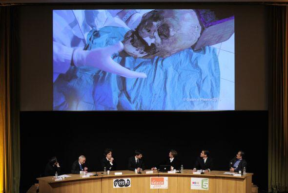 Philippe Charlier, experto forense del Hospital Universitario R. Poincar...