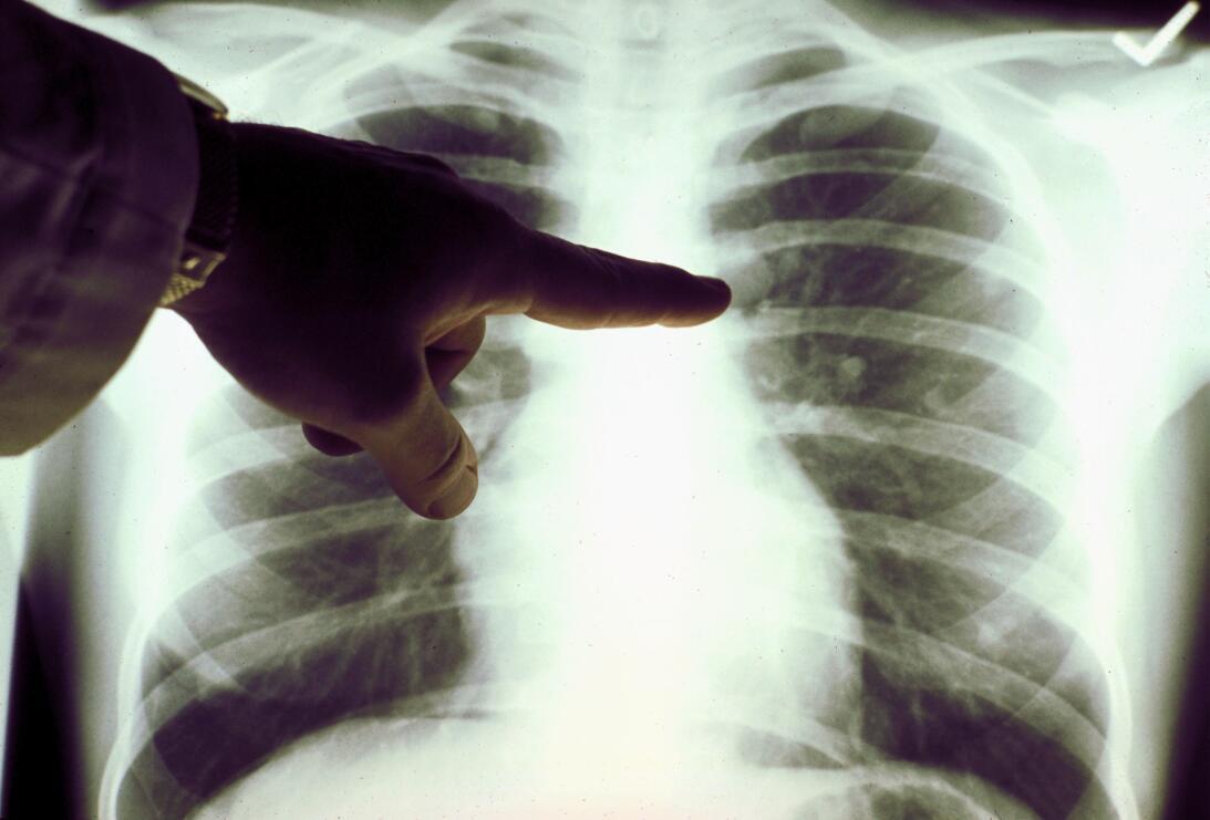 salud cancer pulmon