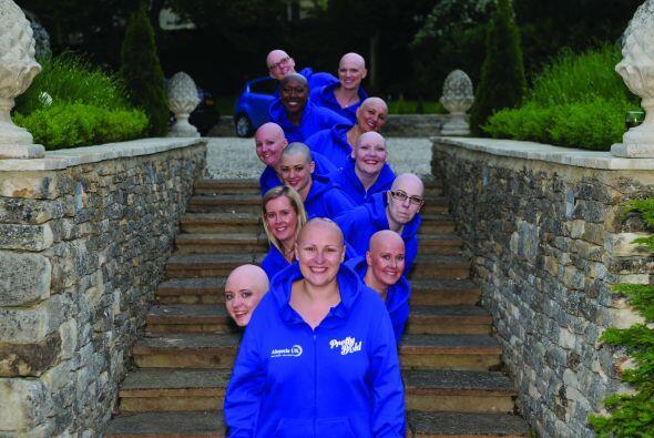 La organizadora del calendario, quien sufrió de alopecia durante tres añ...