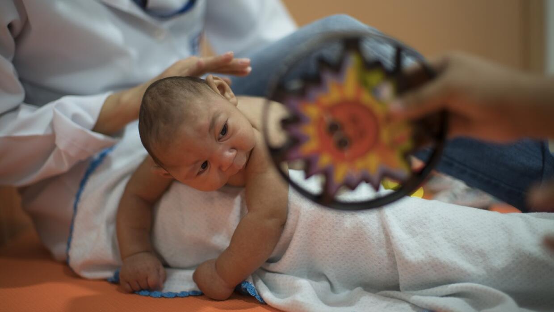 Daniel, de tres meses, nació con microcefalia