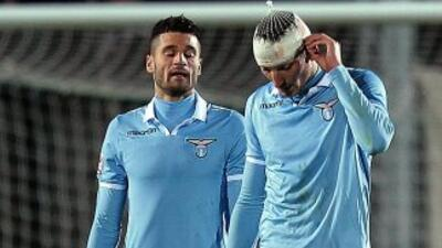 El cuadro lazial fue sorprendido por el Siena.