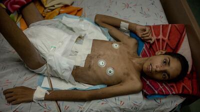 En fotos: la decadencia de un hospital público en Venezuela