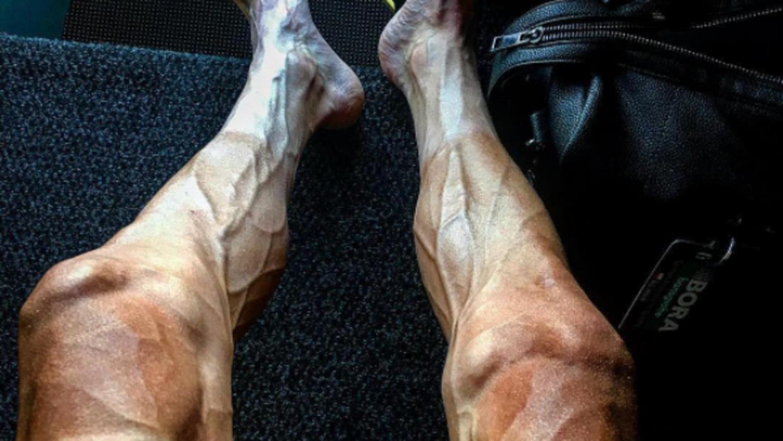 Así quedaron las piernas de Pawel Poljanski después de ter...