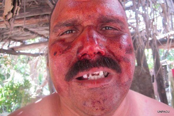 Ramón Escalona, también miembro de UNPACU y también golpeado el 19 de en...