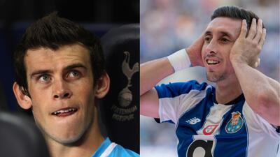 Antes y después: futbolistas que se han sometido a cirugías con cambios evidentes