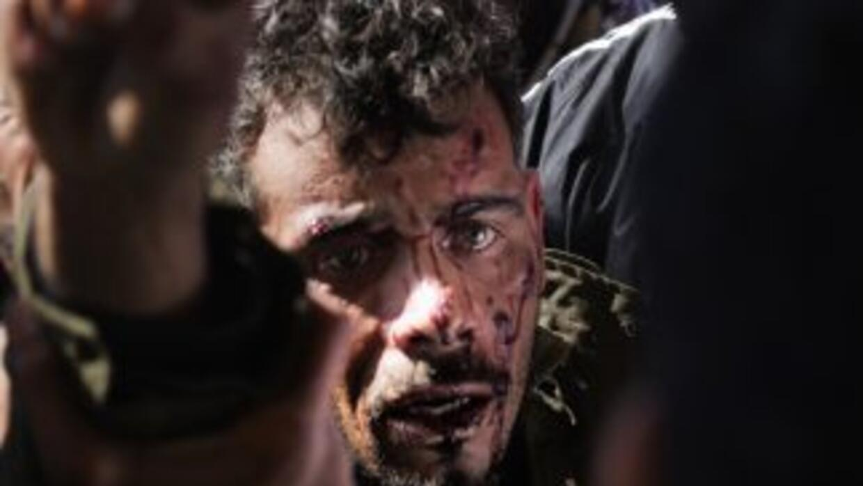 Un hombre herido ingresa a un hospital en el oeste de Libia tras un bomb...