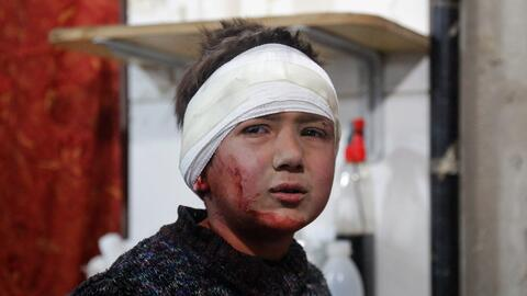 5 de marzo. Un niño sirio herido después de un ataque a&ea...