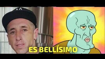 EN MEMES: Héctor Herrera antes y después de la cirugía