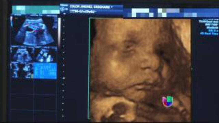 Así se vio baby Kamilia en la barriguita de su mami.