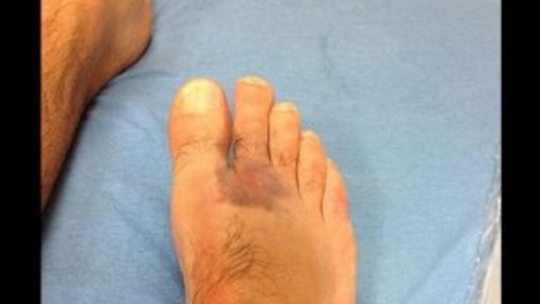 Márquez mostró el golpe en su pie derecho. (Foto: Twitter)