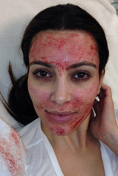 ¿Recuerdan cuando Kim Kardashian nos reveló en la red social Instagram u...