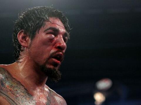 Los boxeadores a veces terminan con 'máscaras' de horror sin quer...