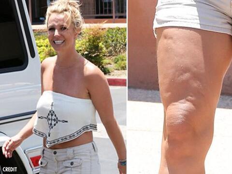 ¡Qué espanto! Britney Spears fue captada en las calles luci...