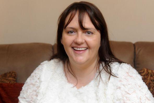 Lynda Dobbins de 42 años de edad ahora tienen una bella sonrisa pero no...