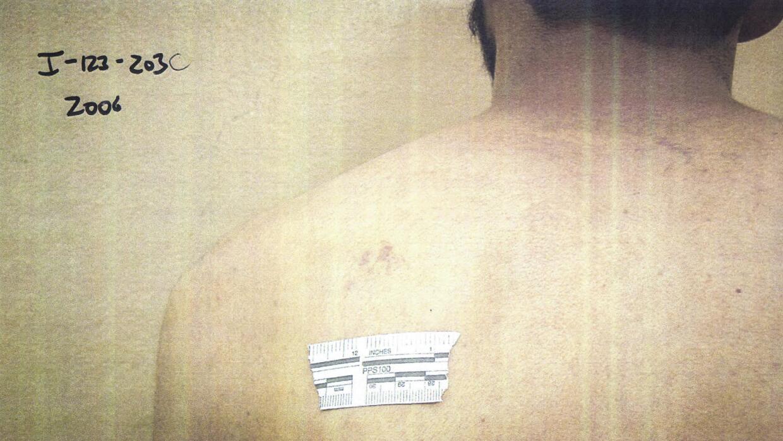 Moretones en la espalda