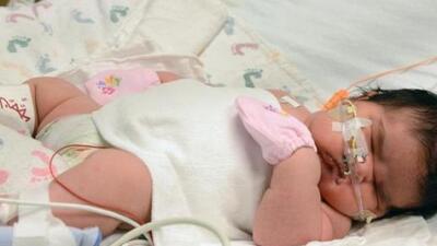 Mia nació el lunes vía cesárea en Alamosa, Colorado. Esta tuvo que ser l...