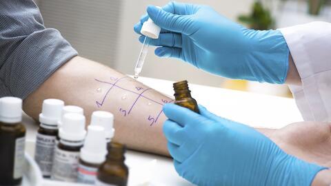 Conoce las pruebas para detectar si sufres alergias