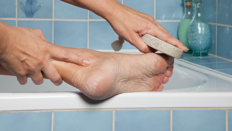 Te contamos cómo removerlos fácilmente, en la comodidad de tu casa.