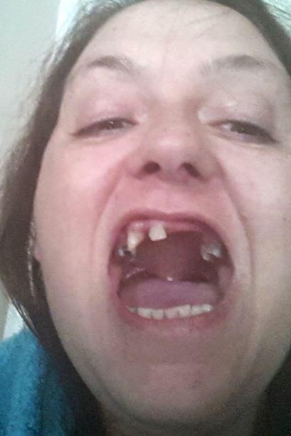 Según Lynda después de lo que le hizo aquel dentista, su boca parecía qu...