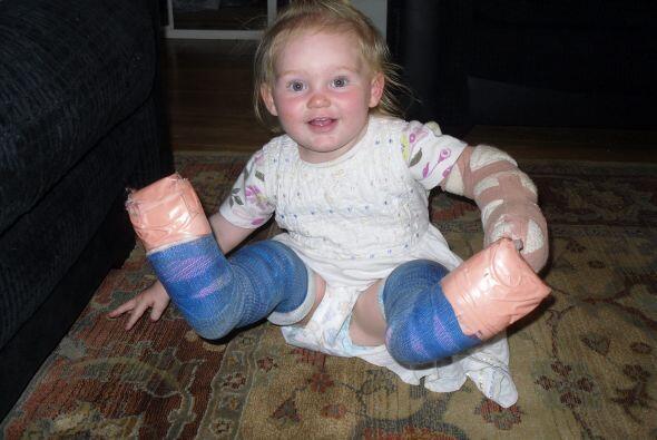 Cuando esta pequeña tenía alrededor de un año de edad le practicaron una...