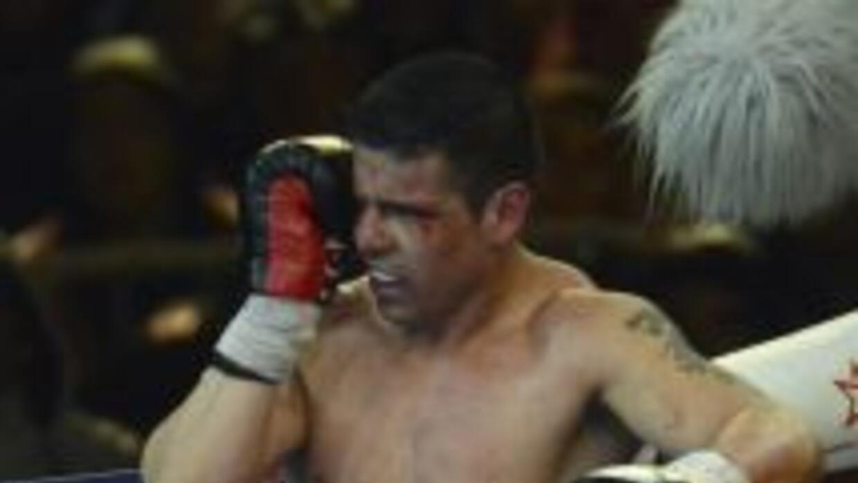 Sergio 'Maravilla' Martínez con fractura en la mano izquierda.