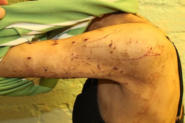 El 22 de abril de 2015 Zunduri logró escapar de su encierro gracias a un...