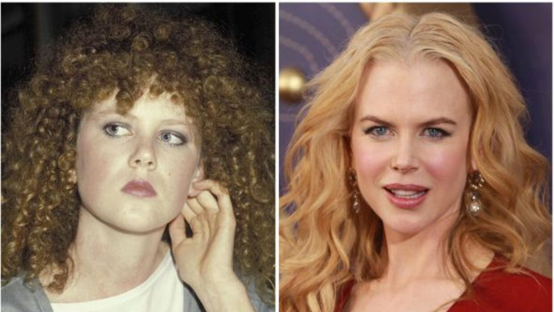 Nicole Kidman con botox