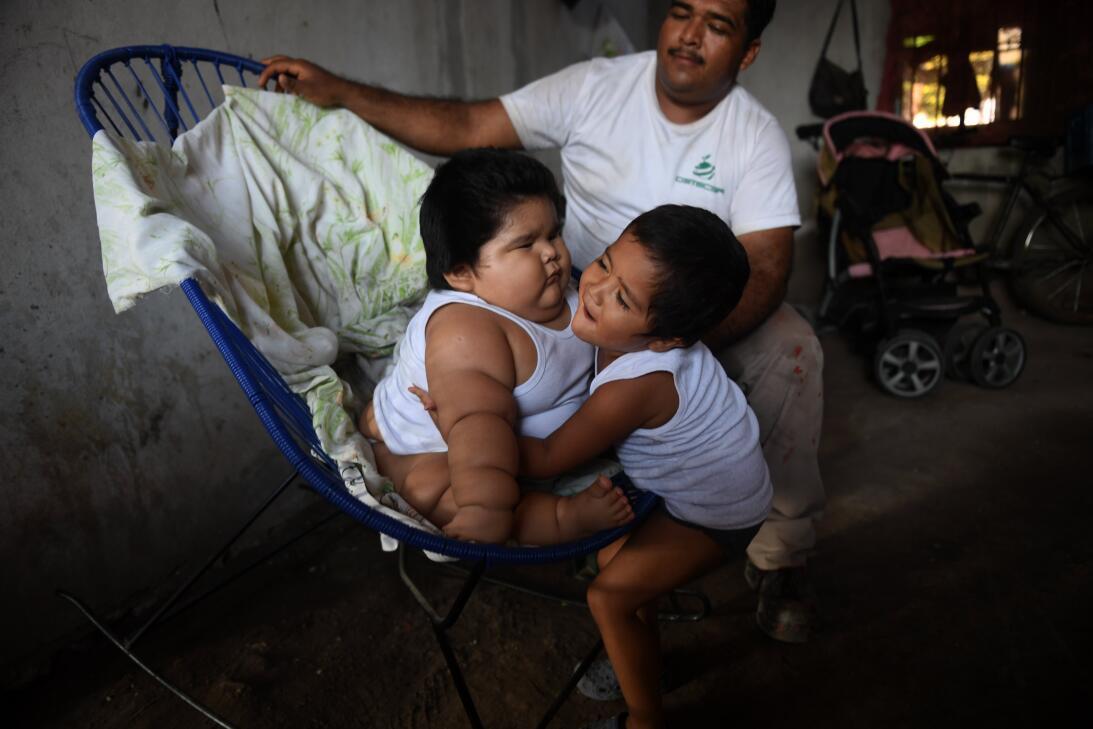 El caso de Luis Gonzáles, el bebé de apenas diez meses que pesa cerca de...