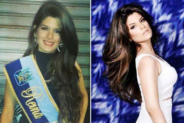 Miss Durán, Catherine Cando, falleció durante una cirug&ia...