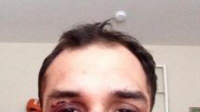 Johny Hendricks mostró su cara a casi una semana del combate. (Foto: Twi...