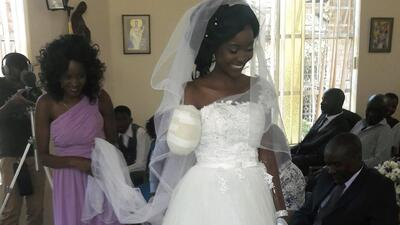 Un cocodrilo le arrancó el brazo a 5 días de su boda e igual se casó