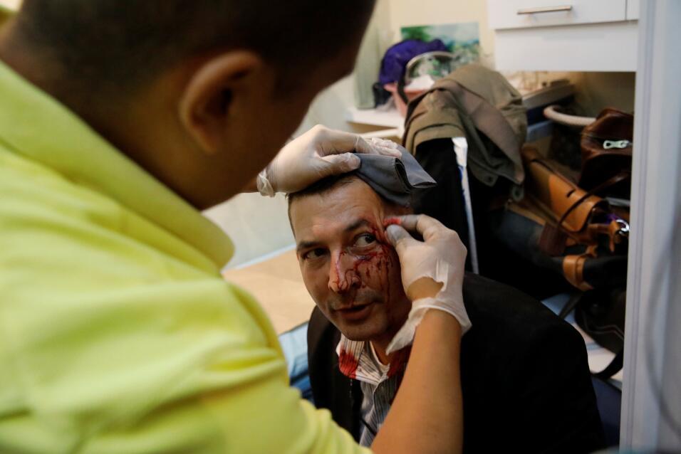 Un trabajador del parlamento recibe tratamiento médico, luego de resulta...